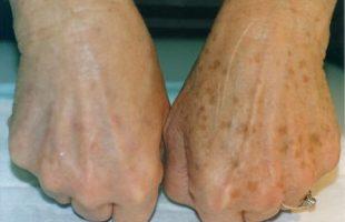 Ringiovanire le Mani: una tecnica dalla Dermatologia
