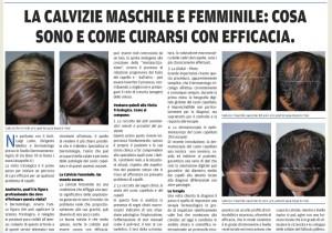 calvizie femminile intervista dott. laino