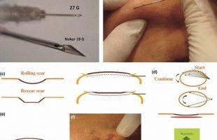Cicatrici da Acne: La Subcision potenziata