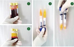 Il PRP (Plasma Ricco di Piastrine) nel trattamento del Lichen Sclerosus