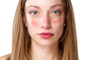 Tutto sulla Rosacea: dai Sintomi alle nuove Terapie