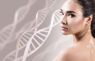 Vitiligine e Malattie autoimmunitarie della Tiroide: esiste un legame