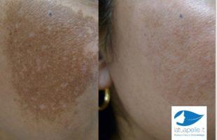 Melasma e Cloasma: Le macchie scure sul viso nella Donna. Terapia Laser combinata